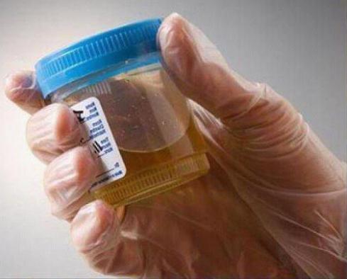 което показва общ анализ на урината