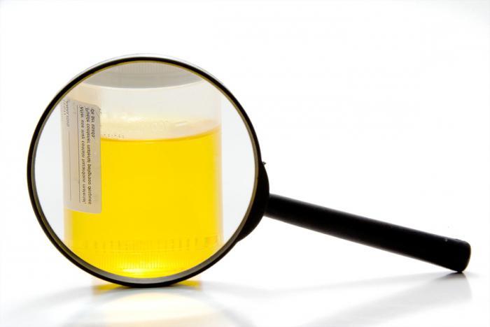 скорост на анализ на урината
