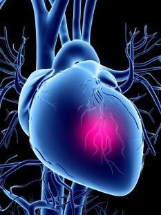 акутно затајење срца