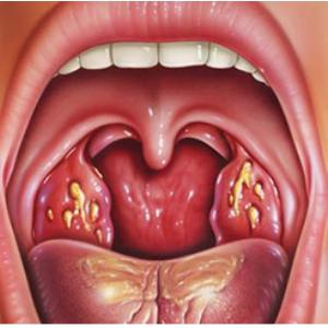 Come trattare la tonsillite acuta