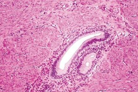 adenomiosi e differenza di endometriosi