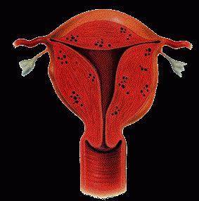 możesz zajść w ciążę z powodu adenomiozy