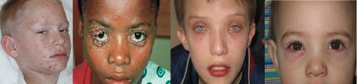 аденовирусна инфекция при деца
