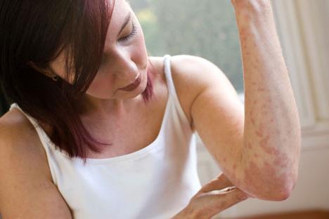 alergická dermatitida