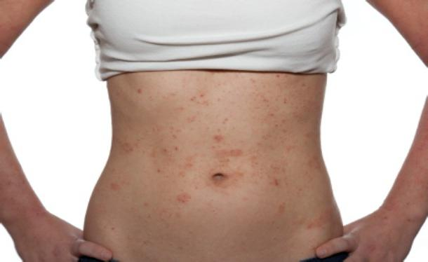 Alergijski osip na tijelu