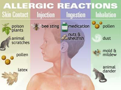 vrste alergijskih reakcija