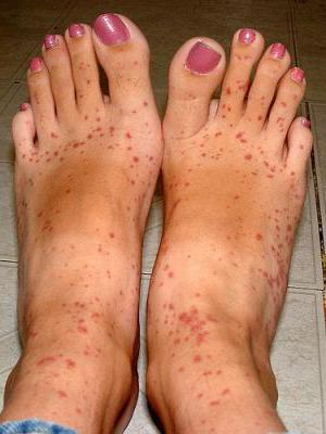 jakie reakcje alergiczne