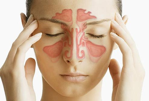 Алергијски ринитис