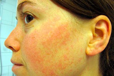 алергично подуване на лицето
