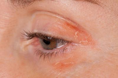 лечение на алергии