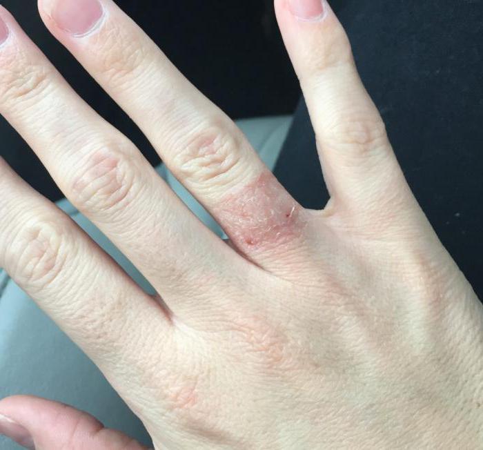 alergija na kovine v zobozdravstvu