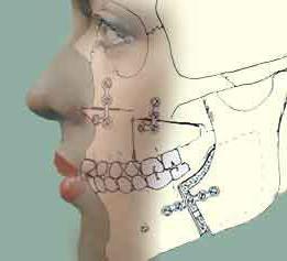 wyrostek zębodołowy górnej szczęki