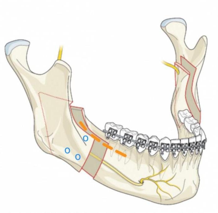 wyrostek zębodołowy żuchwy