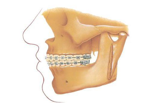 wyrostek zębodołowy