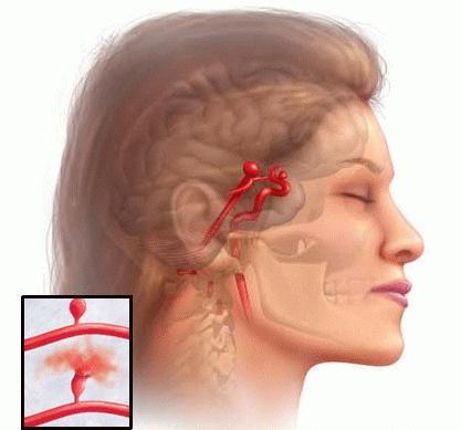 leczenie tętniaka mózgu