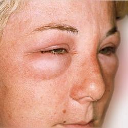 алергијски едем