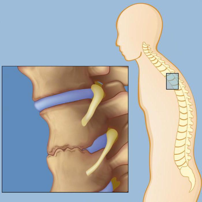 simptomi ankiloznog spondilitisa