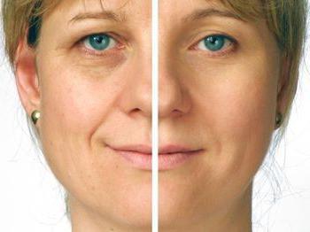 прегледе лица са хијалуронском киселином