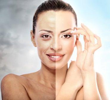 biorevitalizacija lica s hijaluronskom kiselinom