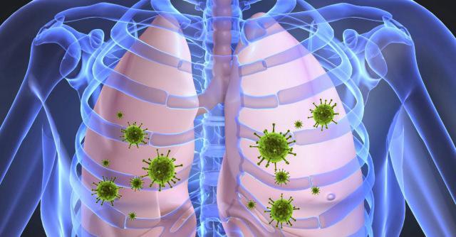 Antibiotik za upalu pluća u odraslih