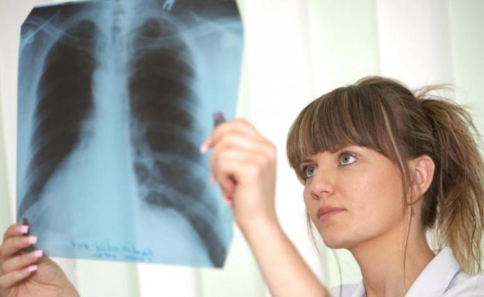 Učinkoviti antibiotici za upalu pluća