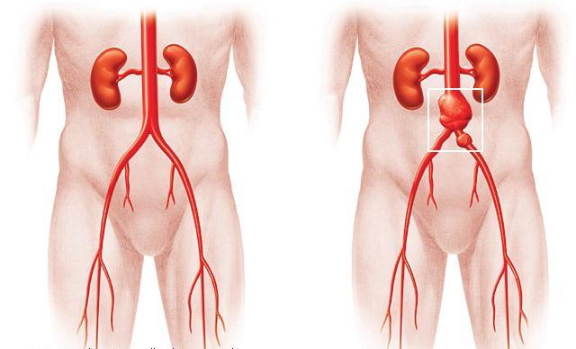 aneuryzma aorty