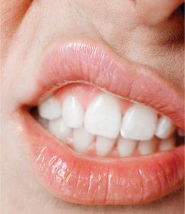 kako zdraviti usta