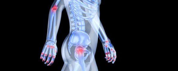 co je artralgie