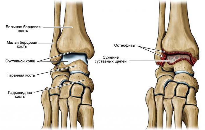 artroza kotníku léčba)