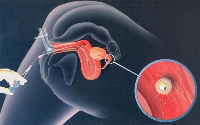 осјемењивање донаторском спермом
