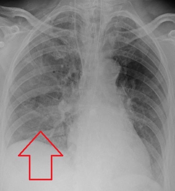 Признаци на аспирационна пневмония