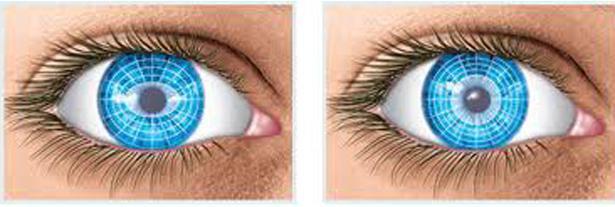 trattamento dell'astigmatismo dell'occhio