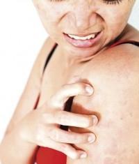 признаци на атопичен дерматит