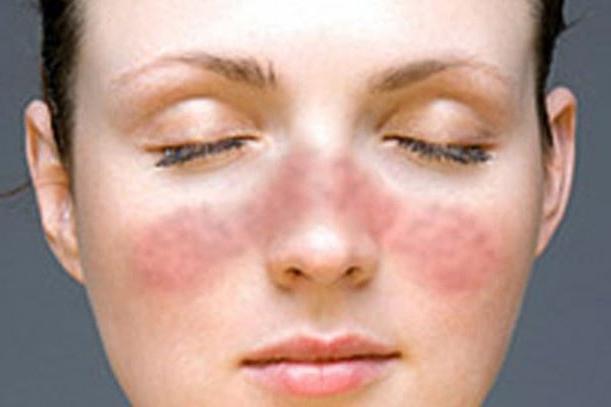 Zdravljenje avtoimunskih bolezni