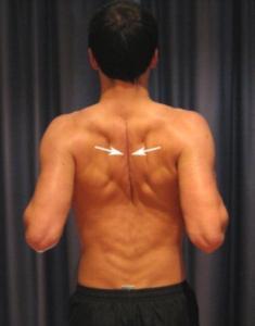 Bolest vyzařující do dolní čelisti