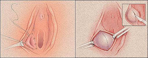 bartholinitis simptomi fotografija