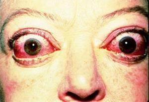 malattia di basilico
