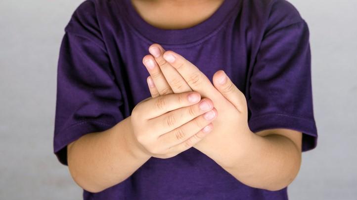 Znaki Behcetove bolezni pri otrocih