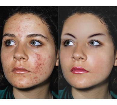 acne del perossido di benzoile