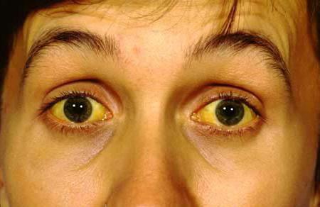simptomi zastoja žolča