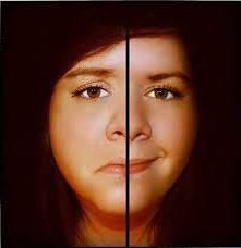disturbo di personalità bipolare