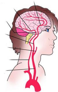poremećaji cirkulacije u mozgu