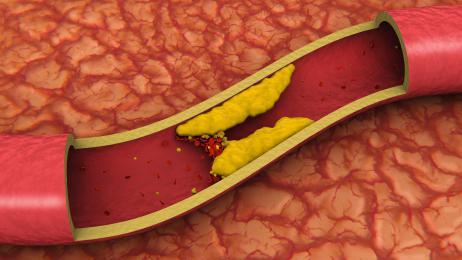 oslabljen dotok krvi u mozak