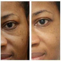 maschera per il corpo per le revisioni del viso
