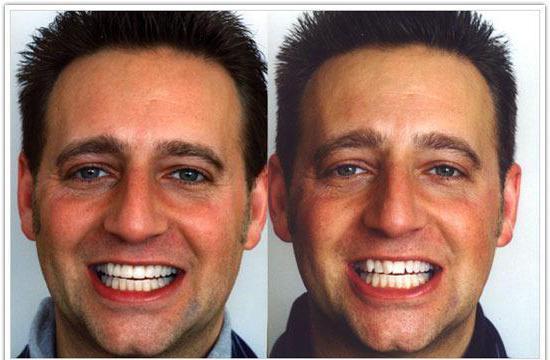 зуби након протеза
