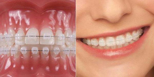 зуби након уклањања протеза