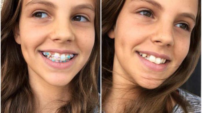 протеза пре и после третмана