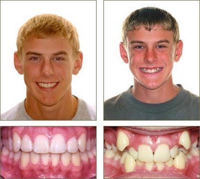 Брацес фотографија пре и после третмана