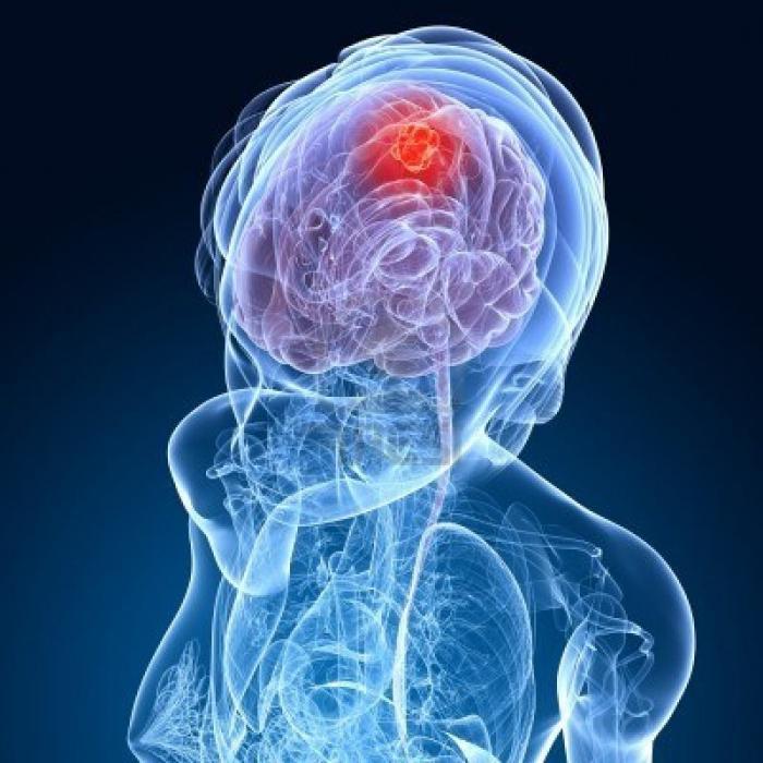 sintomi del cancro al cervello