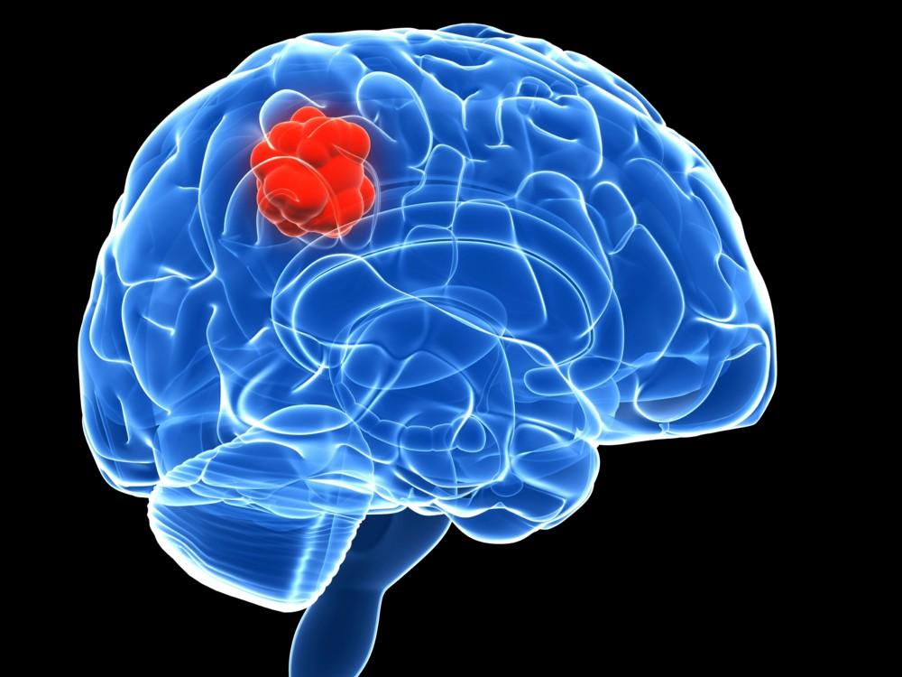 мозъчен глиобластом